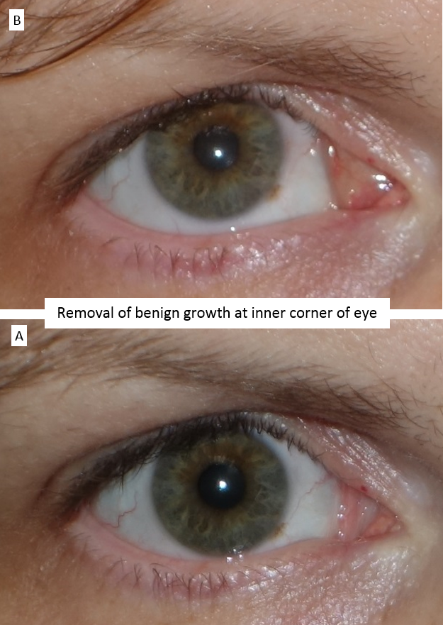 Removal of benign growth at inner corner of eye