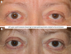 Left upper eyelid recession (lowering) to treat eyelid asymmetry related to thyroid disease