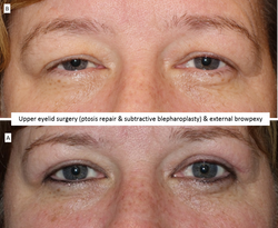 Upper eyelid surgery (ptosis repair & subtractive blepharoplasty) & external browpexy