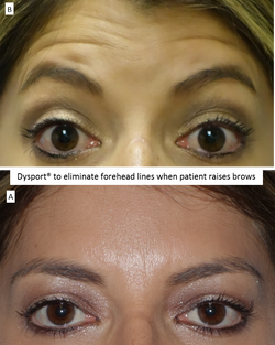 Dysport®_to_eliminate_forehead_lines_when_patient_raises_brows
