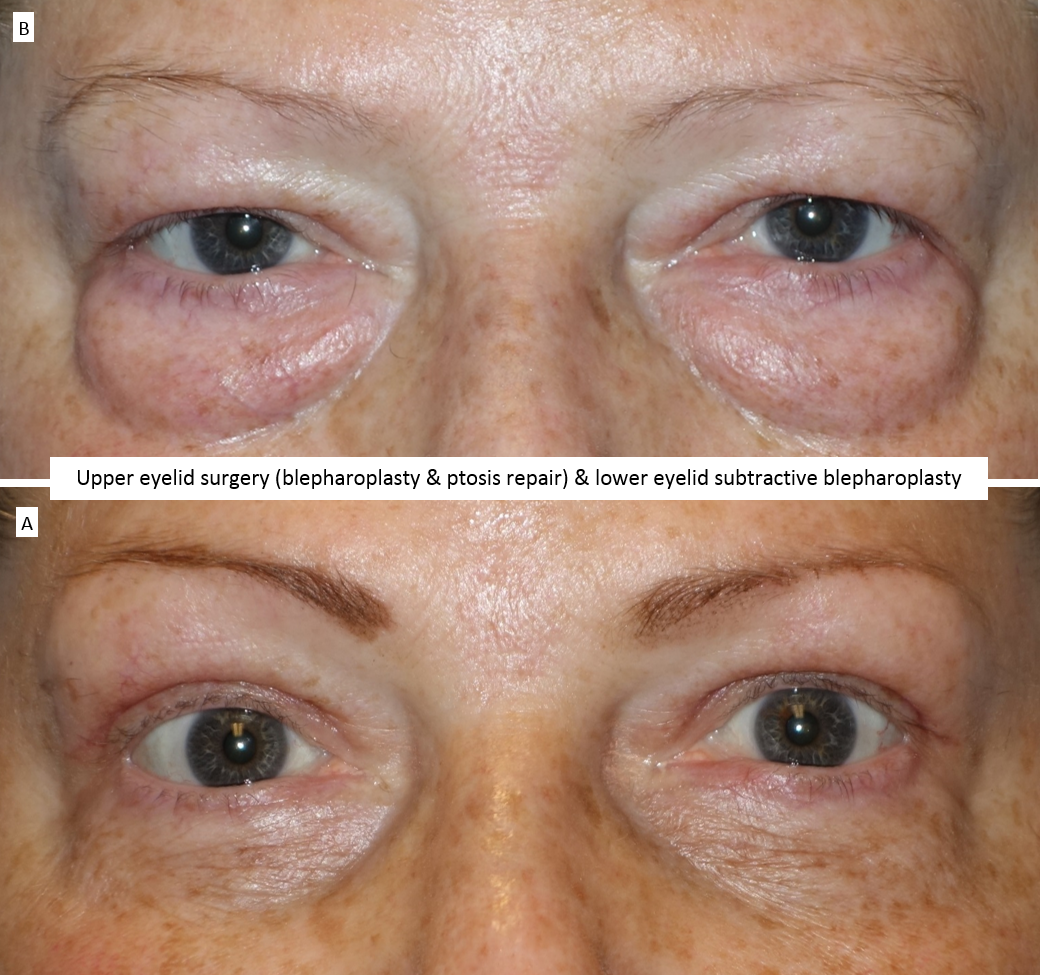 Upper eyelid surgery (blepharoplasty & ptosis repair) & lower eyelid subtractive blepharoplasty