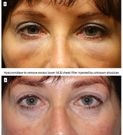 Hyaluronidase to remove excess lower lid & cheek filler injected by unknown physician