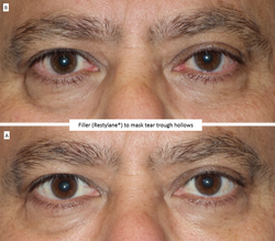 Filler_(Restylane®)_to_mask_tear_trough_hollows