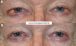 Excision of prolapsed orbital fat