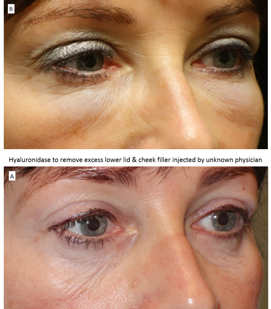 Hyaluronidase to remove excess lower lid & cheek filler injected by unknown physician 2
