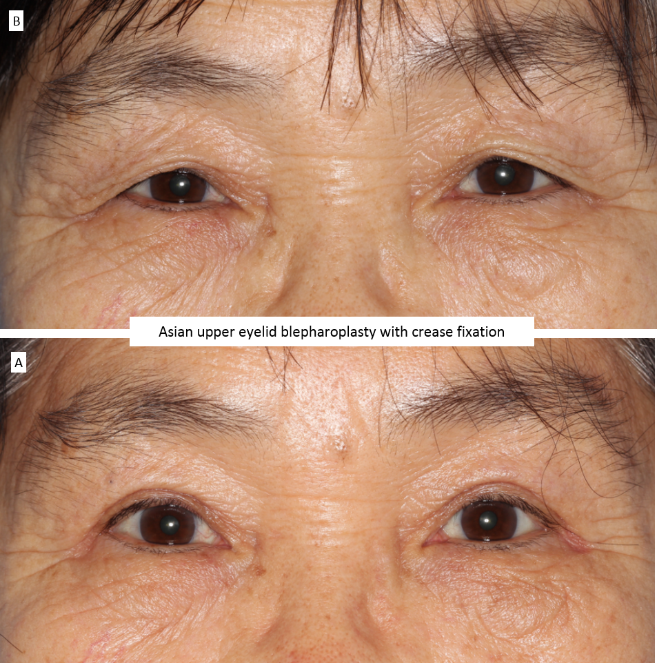Asian upper eyelid blepharoplasty with crease fixation 2
