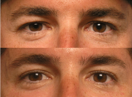 """The 3 Types of """"Droopy Eyelids"""""""