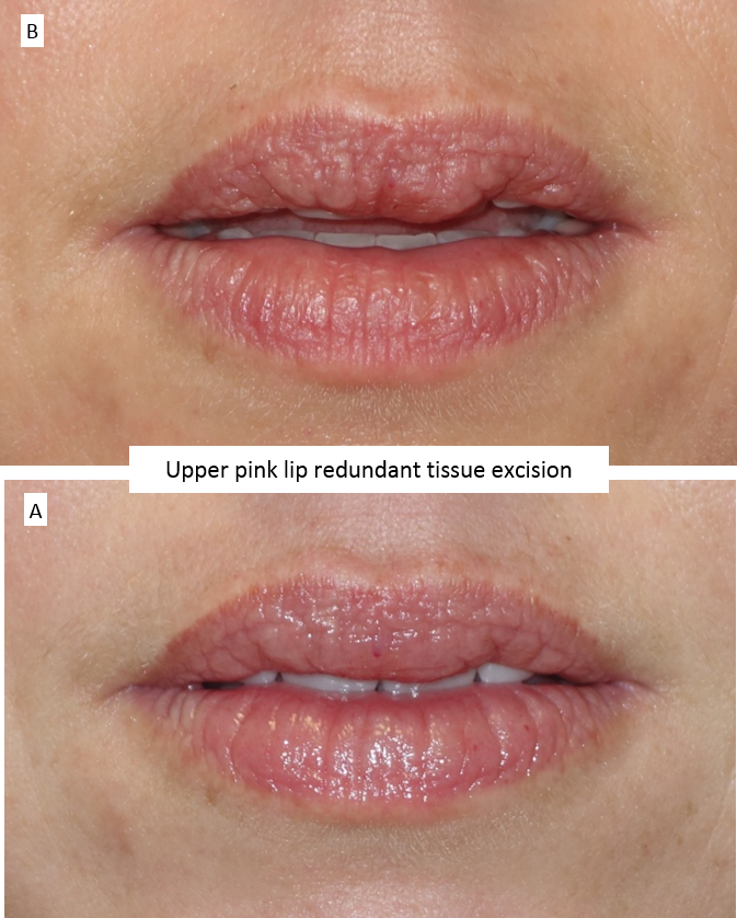 Upper pink lip redundant tissue excision