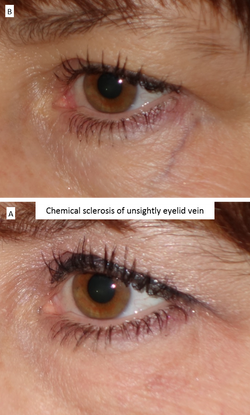 Chemical sclerosis of unsightly eyelid vein