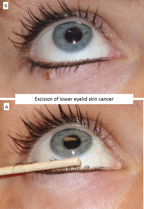 Excision of lower eyelid skin cancer