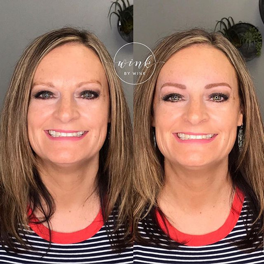 Achieving perfectly defined natural-look