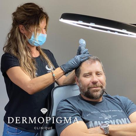 Micropigmentation / Clilnique Dermopigma / Gatineau