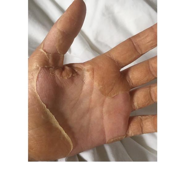 Illness- Izzy Peeling skin hand_edited.j
