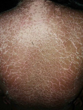 dresssyndrome_exfoliativedermatitis_skin