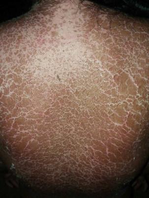 dresssyndrome_exfoliativedermatitis_skin