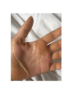 Illness- Izzy Peeling skin hand.jpg