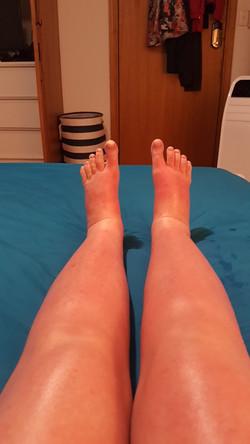 DRESS_legswelling