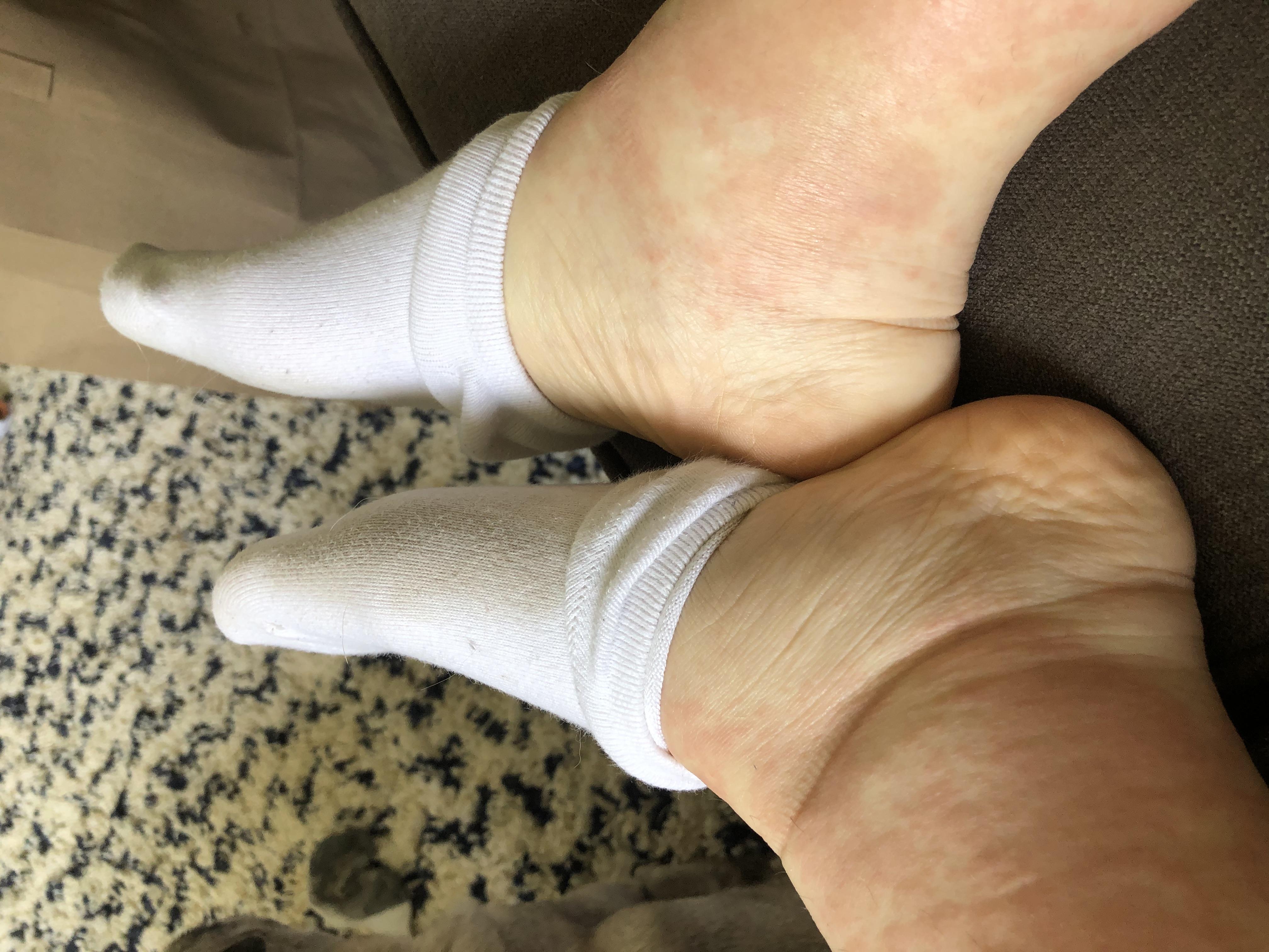 IMG_DRESSsyndrome_edema_swelling