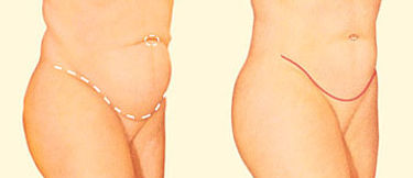 results of a tummy tuck or abdominopasty