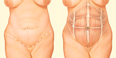 incision of a tummy tuck or abdominoplasty