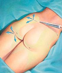 liposuction area for a brazilian butt lift BBL
