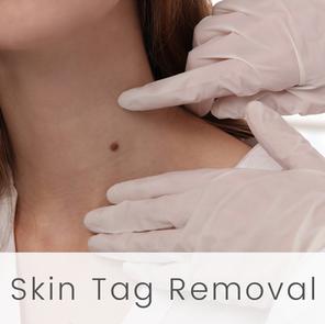 Skin Tag Removal at English Rose Beauty