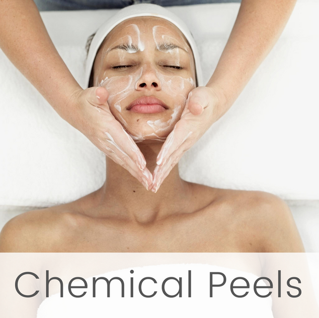 Chemical Peels at English Rose Beauty House.png
