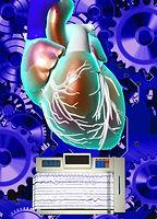 Electrophysiology study (EPS)