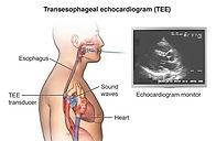 Transesophageal echocardiogram (TEE)