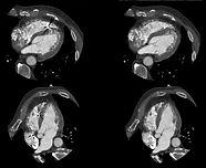 Coronary artery calcium scan/scoring