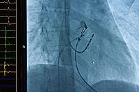 Catheter cardiac ablation