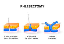 ambulatory phlebectomy.jpg