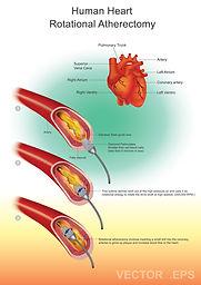 Rotablation (Rotational Atherectomy)