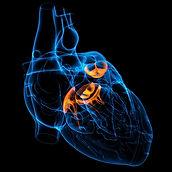 Cardiac percutaneous valve repair
