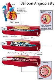 Balloon angioplasty
