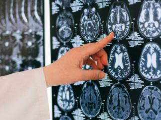 Complicaciones neuroendocrinas de la cirugía en la región selar y paraselar
