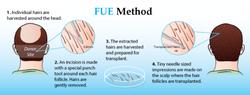 hair-transplant-in-patiala