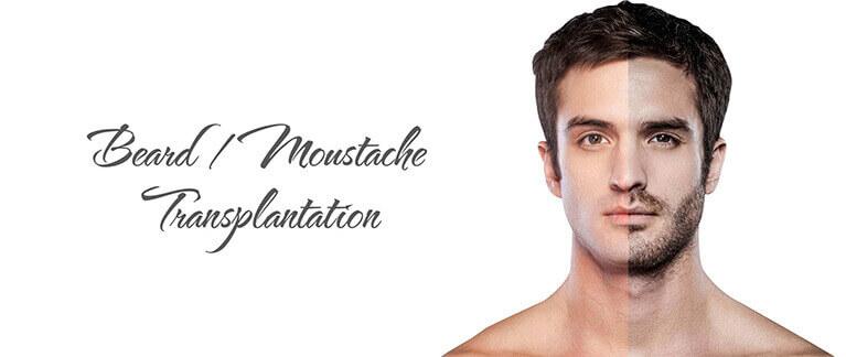 beard-mustache-hair-transplant-mob