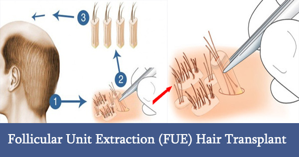 follicular-unit-extraction-fue-hair-transplant