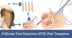 follicular-unit-extraction-fue-hair-transplant