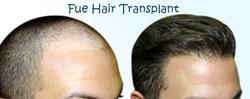 fue-hair-treatment