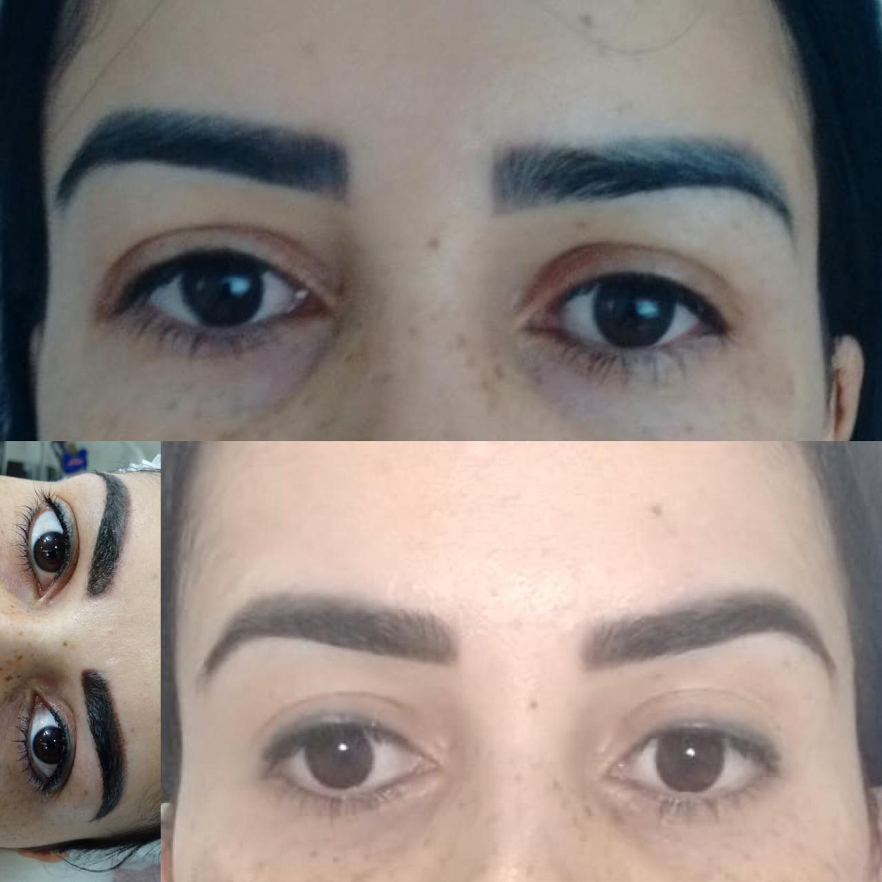 Correção de Micropigmentação