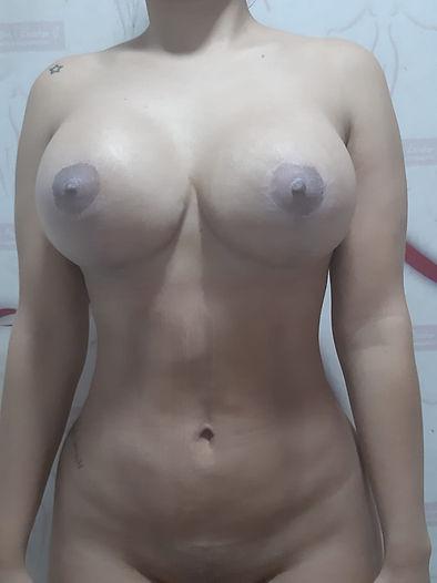 lipomarcacion y pexia