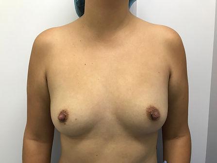 antes mamoplastia
