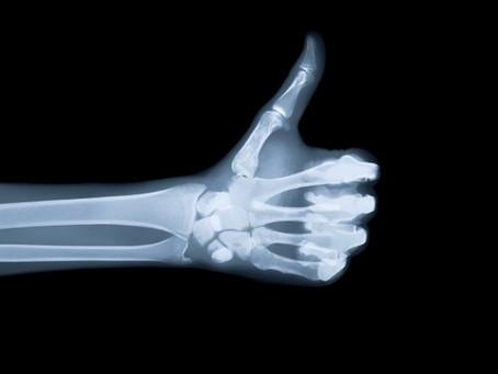 Collecte des radiographies