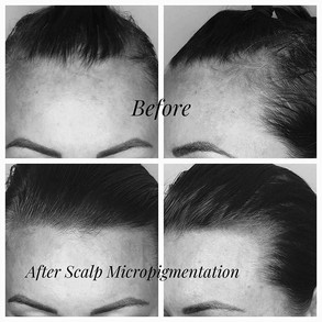 🌟Scalp Micropigmentation🌟 is a procedu