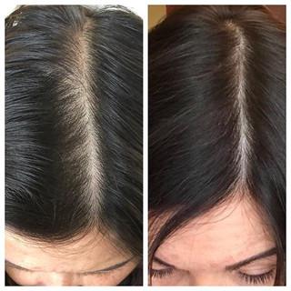 Scalp Micropigmentation procedure to fil