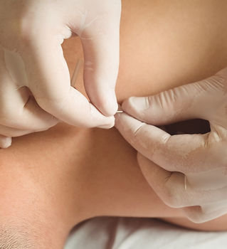 close-up-of-physiotherapist-performing-d