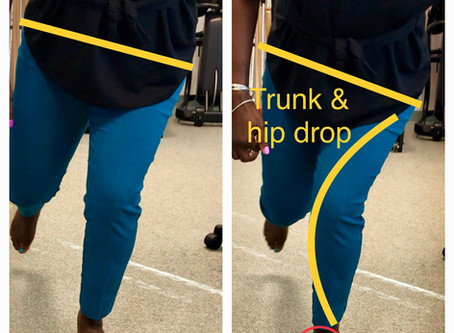 Running Video Analysis: Revealing underline cause of medial lower leg pain in a runner