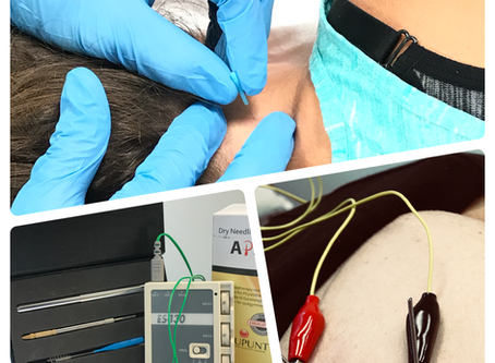 Schedule a Taster Dry Needling (DN) Session Today!